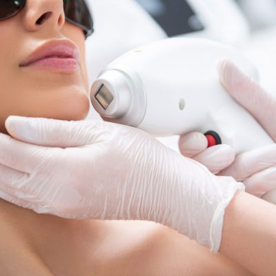 Lady on chin laser hair removal procedure